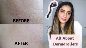 What is Derma Rollers? + How to do MicroNeedling at Home? Before and After Results