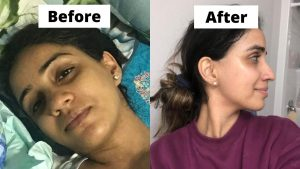 Before and after hyperpigmentation brown tan skin skincare products 1.jpg